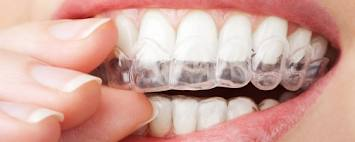 Whitening Trays | No Thanks to Cake